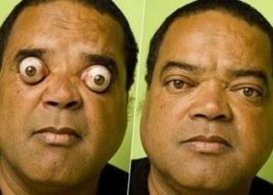 ball eyes